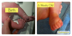 Clubfeet at Birth and 6 Weeks Old - Livingthediagnosis